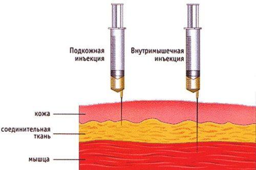 Внутримышечные и подкожные инъекции