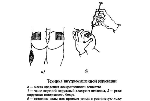 Внутримышечное введение препарата