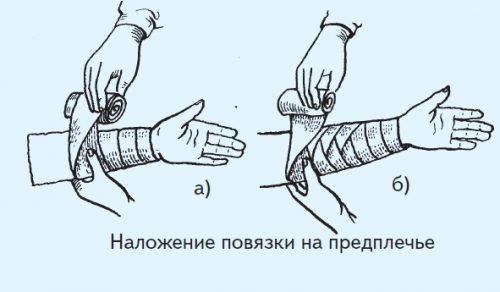 Схема восходящей колосовидной повязки