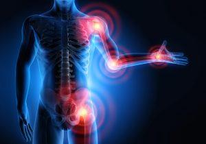 Воспаление суставов при хламидийном артрите