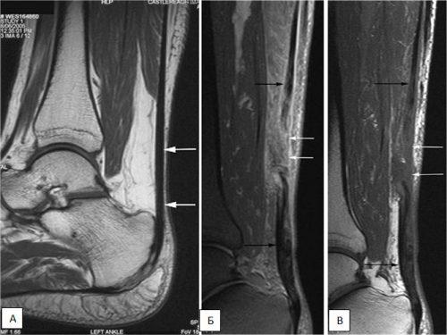 Воспаление аххилова сухожилия на МРТ