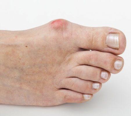 Покраснение и боль в области большого пальца стопы