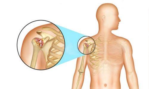 Воспаление плечевого сустава при артрите