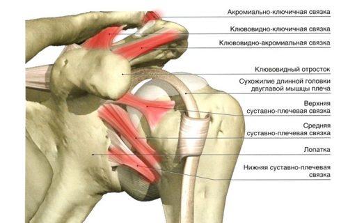 Воспаление связок плеча