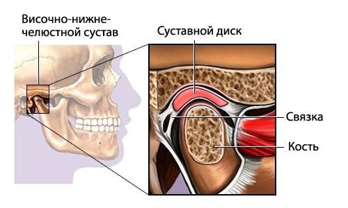 Воспаление височно-челюстного сустава