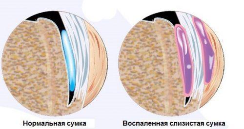 Бурсит - воспаление слизистой сумки