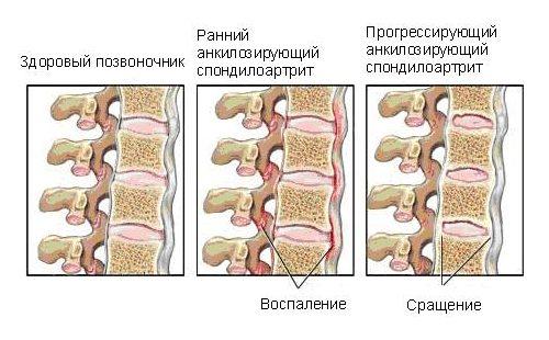 Воспалительный процесс и сращение позвонков при спондилоартрите