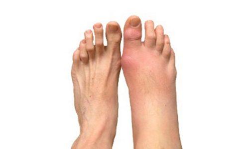 Воспаление суставов ног