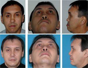 Восстановление деформации челюсти