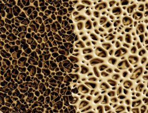 Восстановление костной ткани
