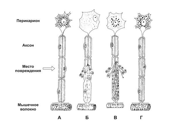 Восстановление нерва