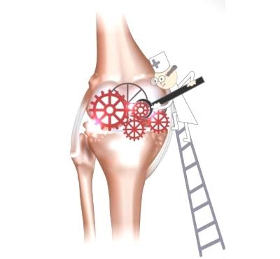Восстановление работы суставов