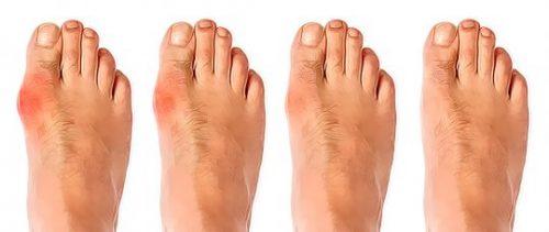 Восстановление сустава большого пальца стопы