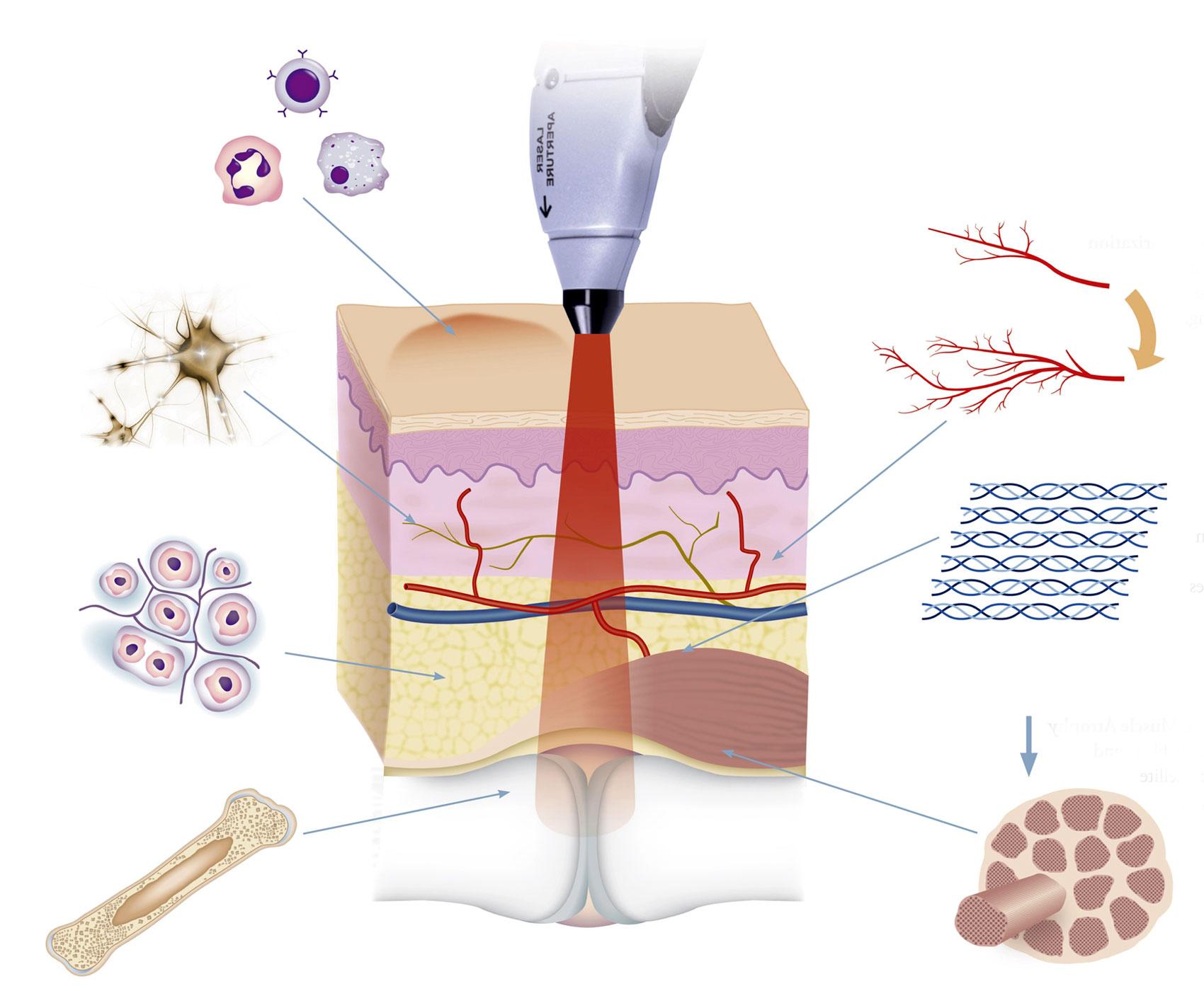 Воздействие лазера на воспаленные ткани