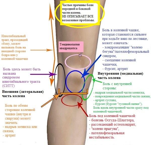 Возможные причины боли в колене