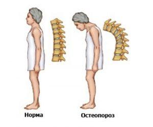 Возникновение горба из-за остеопороза