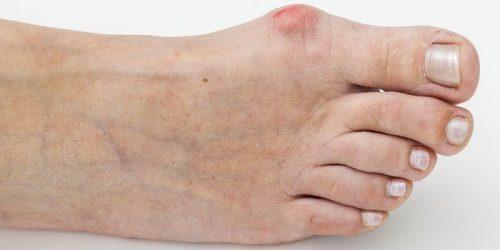 Возникновение шишки на ноге