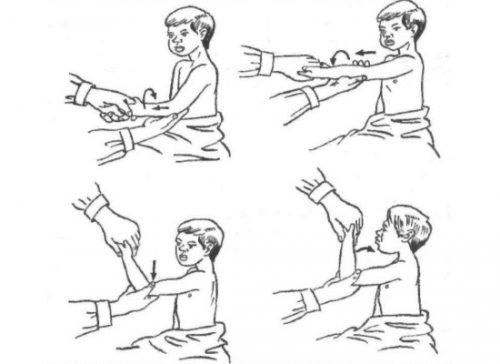 Вправление лучевой кости