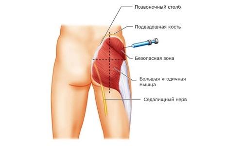 Введение инъекции внутримышечно