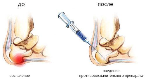 Пункция при бурсите стопы