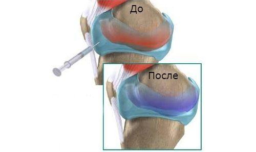 Введение инъекции в сустав
