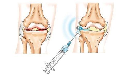 Введение гиалуроновой кислоты в сустав