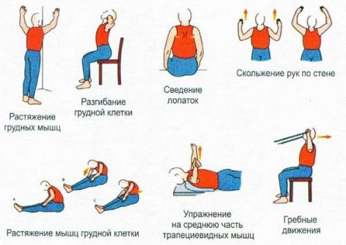 Выполнение упражнений при торакалгии
