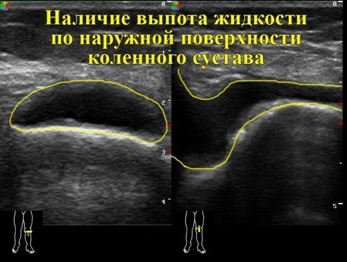 Увеличенный выпот в коленном суставе на УЗИ