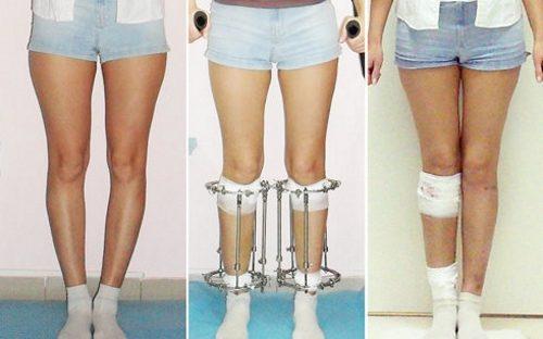 Выпрямление ног