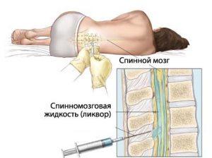 Вытекание спинномозговой жидкости