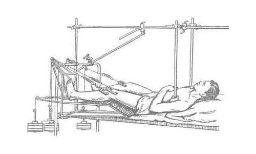 Вытяжение костей таза