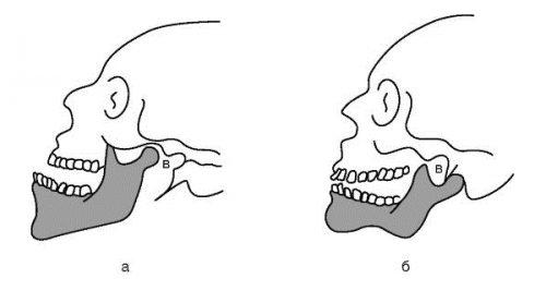 Вывих костей челюсти