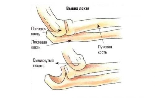 Травма вывих локтевого сустава