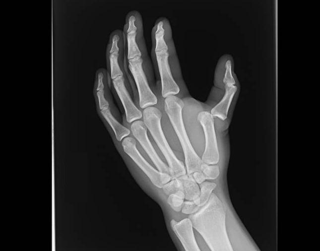 Вывих пальца на рентген снимке