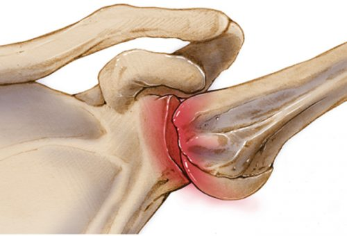 Травма вывих плеча