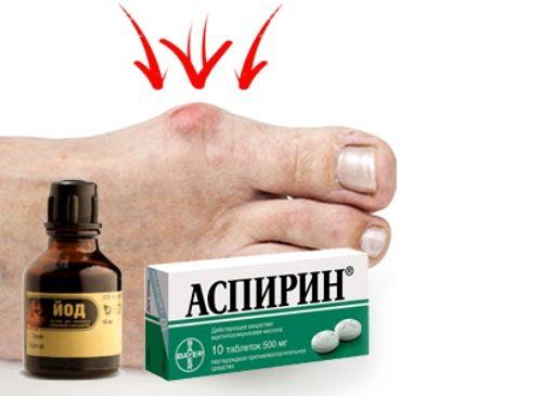 Йод и аспирин от косточки на ногах