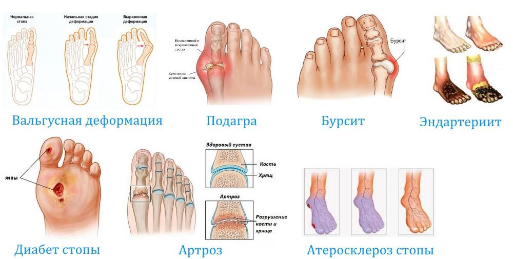 Заболевания — причины боли в большом пальце ноги