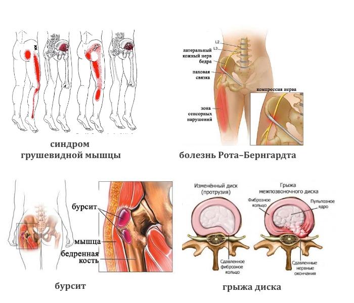 Заболевания, вызывающие боли в ягодице и ноге