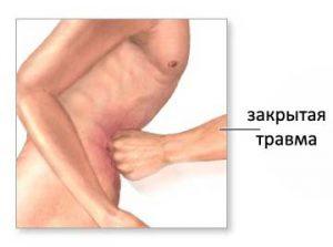 Закрытая травма живота