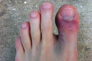 Закрытый перелом пальца на ноге