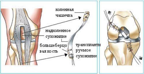 Замена связки коленного сустава