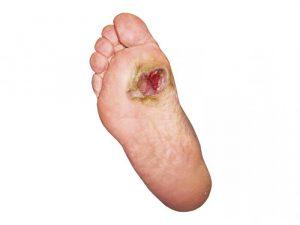 Заражение раны на ступне и развитие некроза
