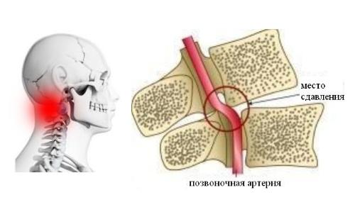 Вертеброгенная цервикокраниалгия
