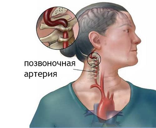 Защемление артерии шейного отдела