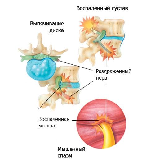 Защемление нерва при грыже позвоночника