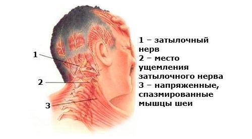 Проблема защемления нерва шеи