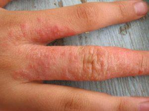 Зуд и крапивница при аллергии